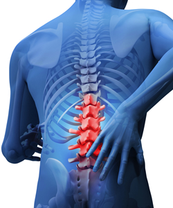 Patient Education: Back and Neck Pain FAQs